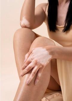 Schöne frau mit vitiligo posiert