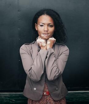 Schöne junge brunettefrau mit vitiligo-krankheit