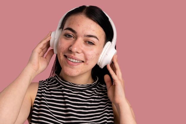 Schöne junge frau mit akne, die musik hört