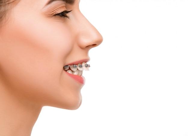 Schöne junge frau mit zahnklammern