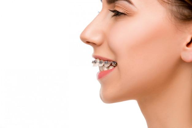 Schöne junge frau mit zahnspangen