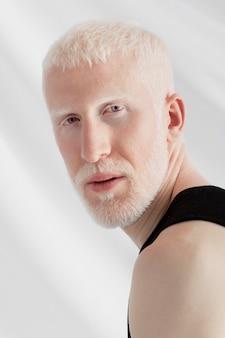 Schöner albino-mann posiert