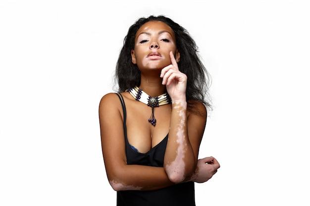Schönes afrikanisches mädchen im studio mit hautproblemen vitiligo