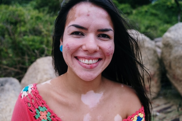 Schönes lateinisches mädchen mit vitiligo am strand. welt vitiligo-tag. pigmentstörungen. depigmentierung der haut. chronische hautkrankheit.