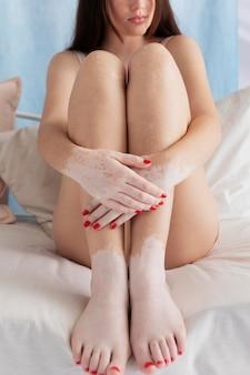 Selbstbewusste frau mit vitiligo posiert