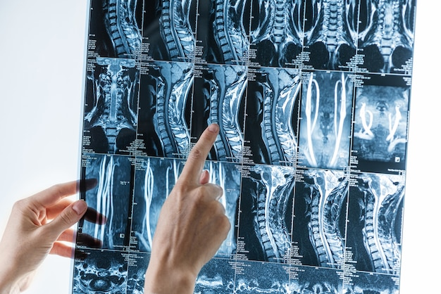 Serie von mrt-bildern der halswirbelsäule in händen von spezialisten, osteochondrose, skoliose-konzept