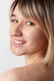 Smiley-frau mit akne, die nahaufnahme aufwirft