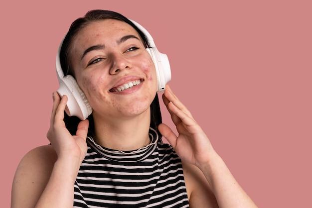 Smiley junge frau, die mit ihrer akne zuversichtlich ist