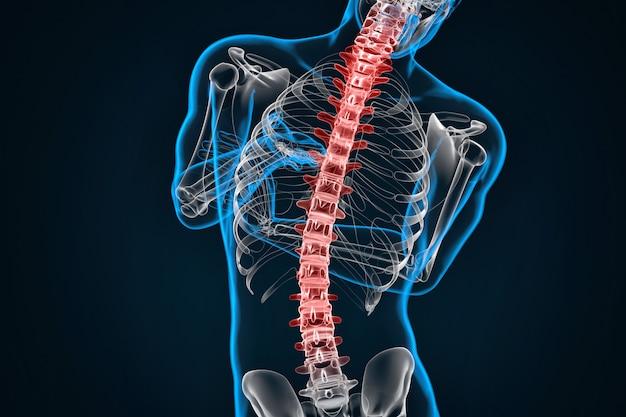 Spondylose und skoliose. 3d-darstellung. enthält beschneidungspfad