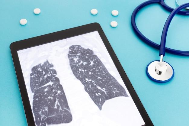 Tablet-computer mit lungenröntgen und stethoskop und pillen auf blauer oberfläche. konzept für lungenkrankheiten