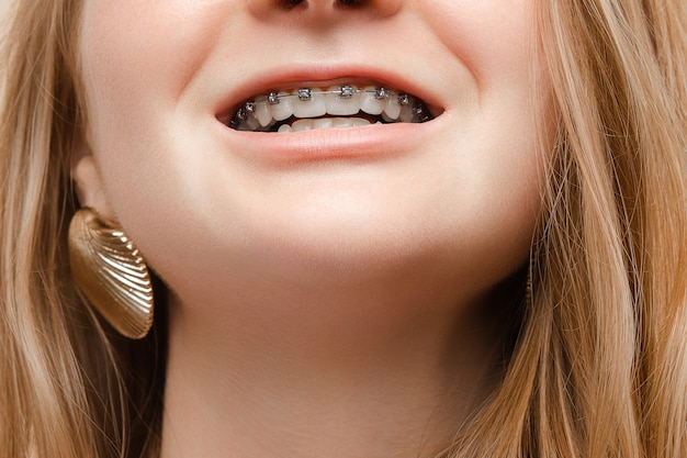 Teenagerfrau, die mit offenem mund lächelt und zahnspangen auf zähnen zeigt