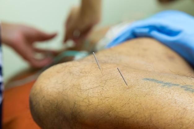 Therapeut, der einem alten mann im krankenhaus akupunktur-behandlung gibt