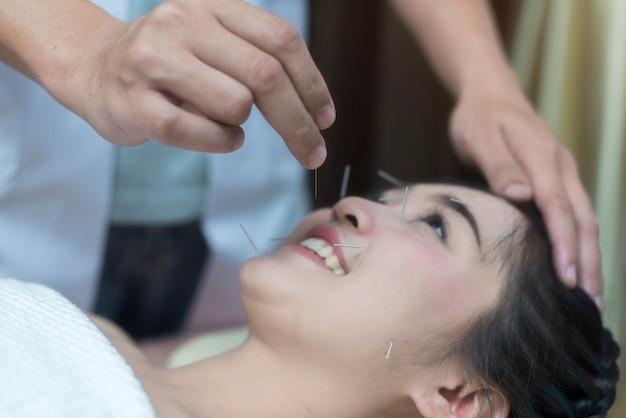 Therapeut geben akupunkturbehandlungsnadel auf dem kopf für haartransplantationsbehandlung