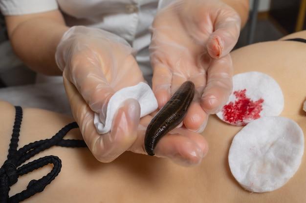 Traditionelle alternativmedizin - arzt, der das verfahren der hirudotherapie für junge frau durchführt.