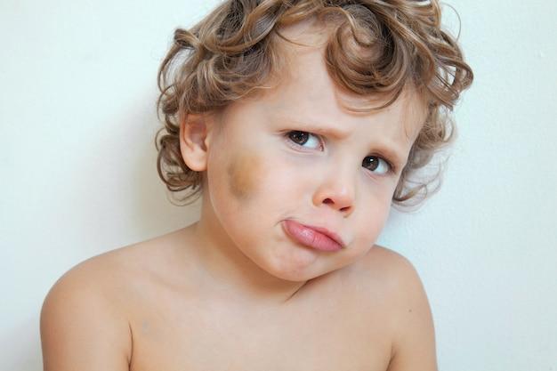Trauriger kinderjunge mit bluterguss auf wange und gesicht, missbrauchskonzept beleidigtes kind.