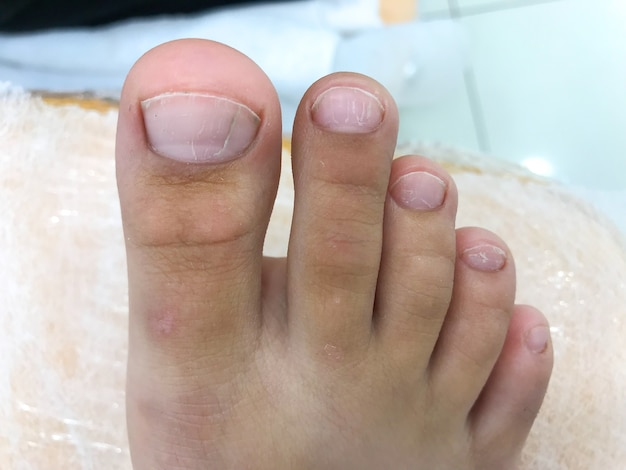 Treten sie ungleichmäßige zehennägel bei einem besuch bei einem teenager und behandlung durch einen podologen