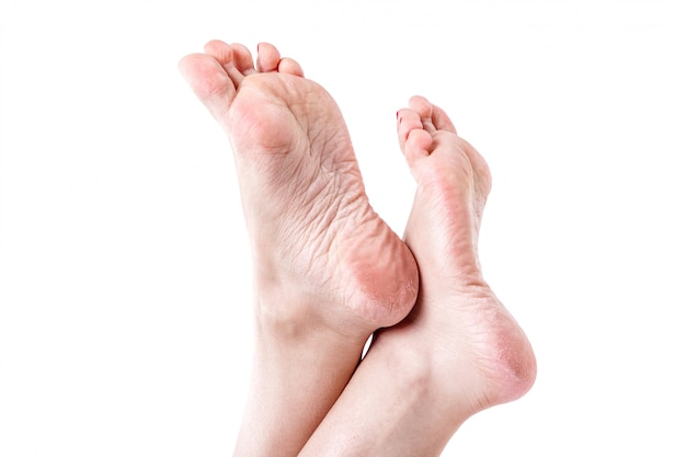 Trockene, dehydrierte haut auf den fersen weiblicher füße mit hornhaut