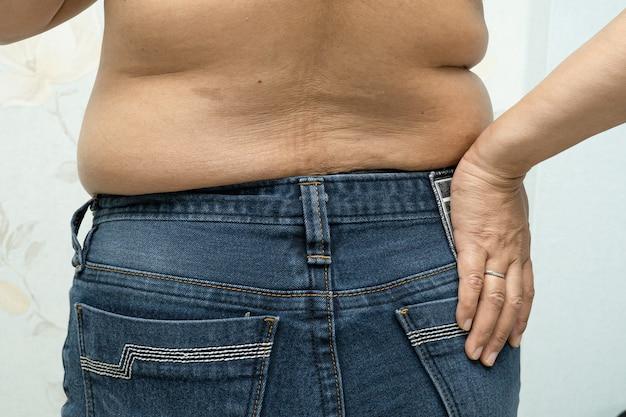Übergewichtige asiatische frau zeigen fetten bauch im büro.