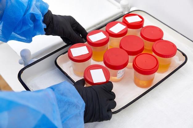 Urinanalyse im labor. medizinischer urintest. urinprobe zur laboranalyse.