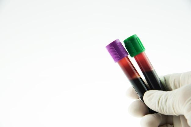 Vacutainer blutsammelröhrchen für labortests.