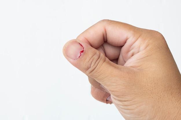 Verletzungsnageldaumenfinger, der nahaufnahme auf weiß blutet