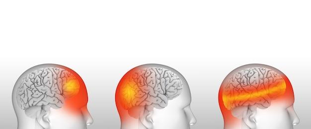 Verschiedene arten von kopfschmerzen migräne, blutdruck und belastung
