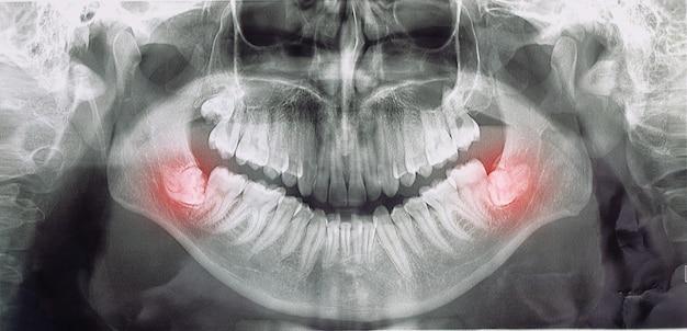 Verschiedene arten von weisheitszähnen probleme konzept, problemzähne röntgenbild gescannt, panoramabild