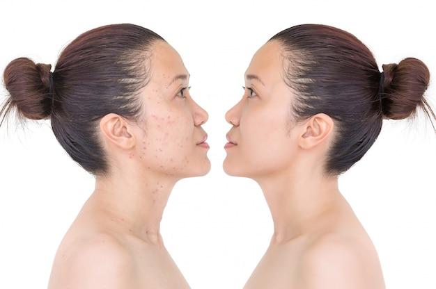 Vor und nach der laserbehandlung