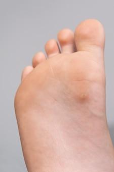 Warze, papillom an den füßen. makroaufnahme, selektiver fokus, nahaufnahme, platz für text. dermatologische probleme mit der haut.