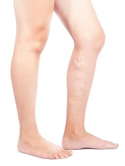 Weibliche beine mit krampfadern auf weißem hintergrund