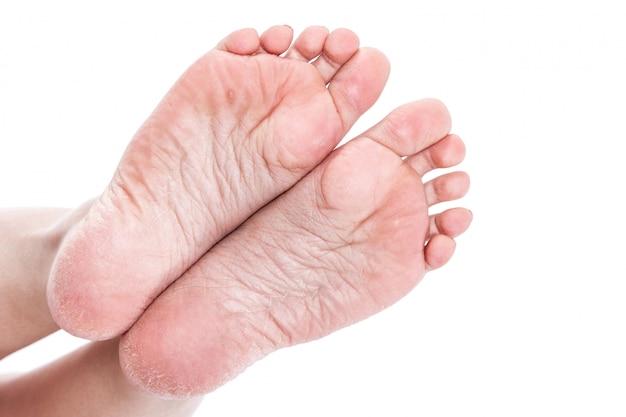 Weibliche beine mit übergetrockneter entwässerter trockener haut auf fersennahaufnahme