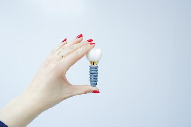 Weibliche hand, die falschen zahn des zahnimplantats hält. zahn menschliches implantat. dental-konzept. menschliche zähne oder gebisse