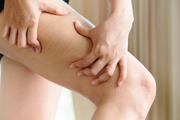 Weibliche hand hält cellulite und dehnungsstreifen am bein
