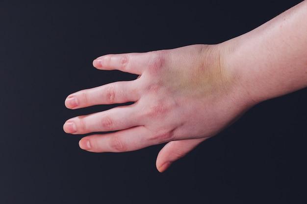 Weibliche hand mit großem blauen fleck auf weiß. salbenbehandlung. häusliche gewalt oder keine vorsicht.