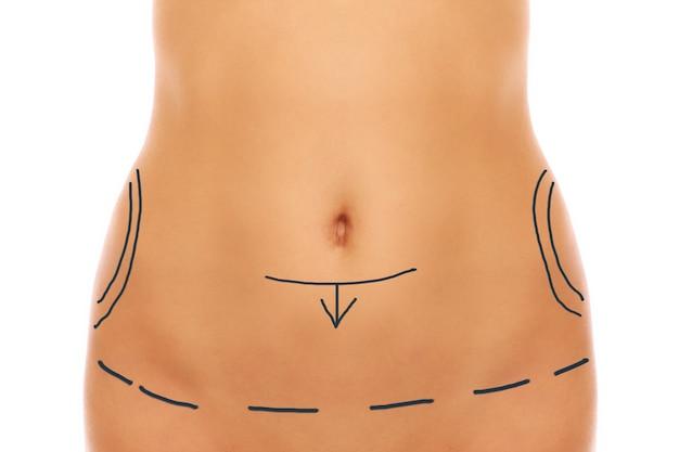 Weiblicher bauch mit markern für plastische chirurgie