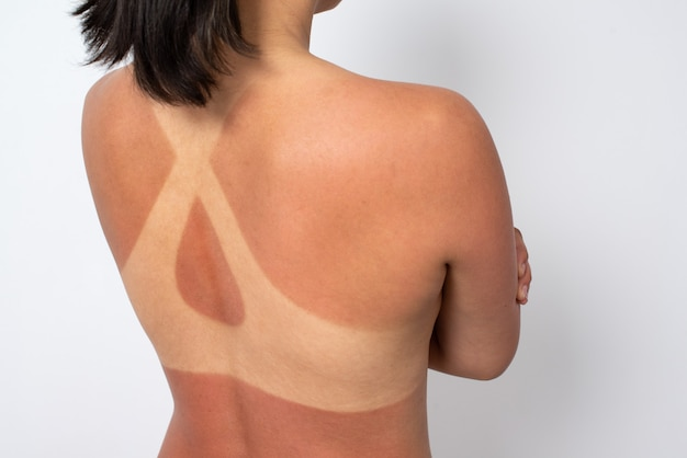 Weiblicher rücken mit sonnenbrand und spuren eines badeanzugs