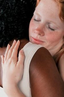 Weiße enthäutete junge frau, die ihre afrikanische freundin umarmt