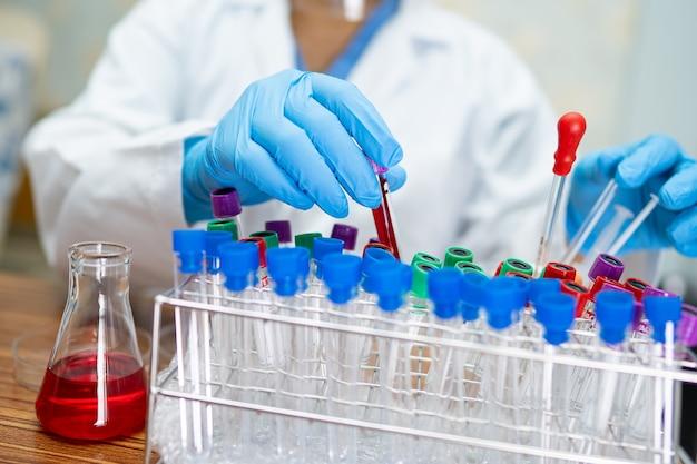 Wissenschaftler halten und analyseröhrchen von coronavirus im labor