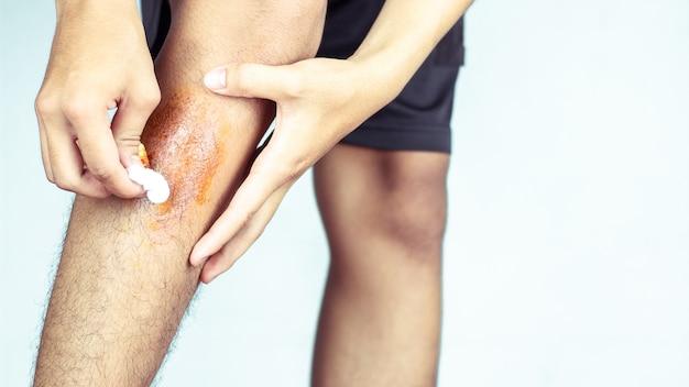Wunde in den beinen der männer, verursacht durch sport.