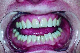 Zähne, die menschliche
