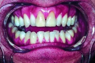 Zähne, knochen, zahnfleisch