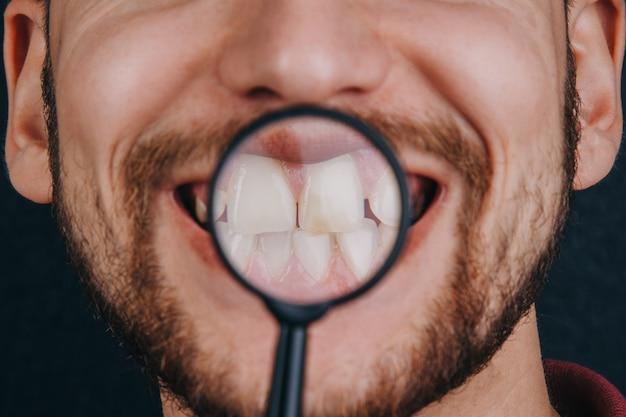 Zähne unter einer lupe. porträt eines kerls mit einer schnurrbartnahaufnahme.