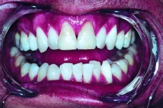 Zähne, weiß