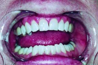 Zähnen, mund und zähne