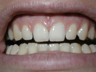 Zähnen, mund und zahnfleisch
