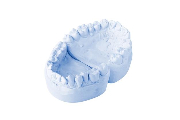 Zahnabdruck isoliert auf weißem hintergrund
