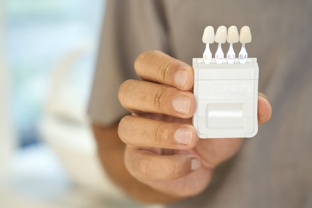 Zahnärztin präsentiert zahnaufhellungsset mit mustern