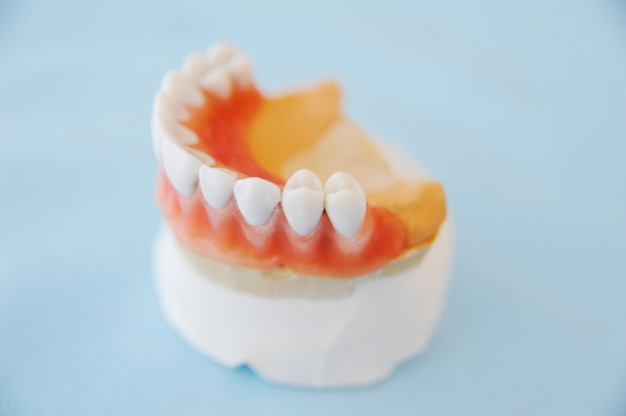 Zahnärztliche abdrücke auf einer nahaufnahmetabelle