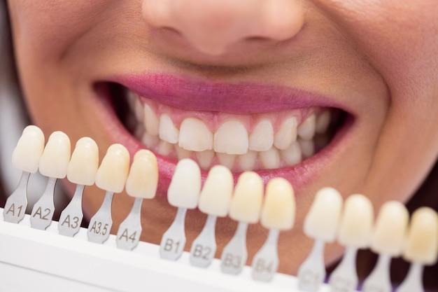 Zahnfarbe a3 5 zu dunkel