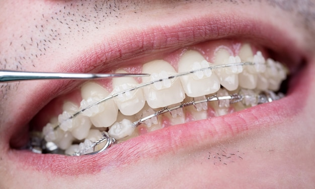 Zahnarzt, der zähne mit keramikbrackets unter verwendung der sonde in der zahnarztpraxis überprüft. makroaufnahme von zähnen mit zahnspangen. kieferorthopädische behandlung. zahnheilkunde